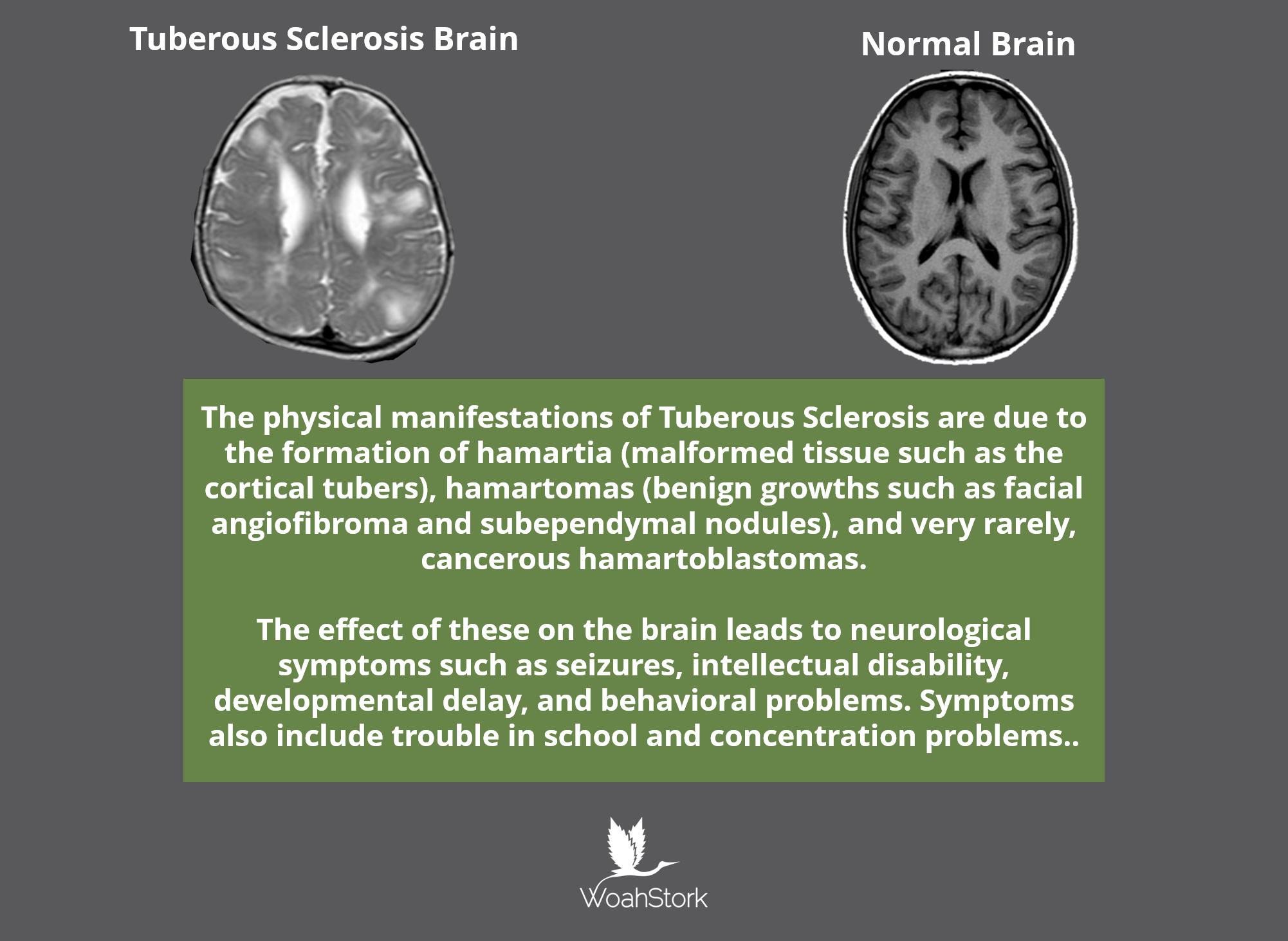 epidiolex for tuberous sclerosis