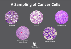 a sampling of cancer cells