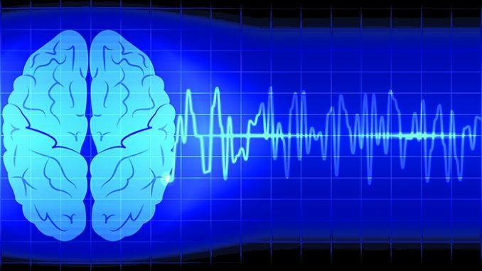 epilepsy cbd